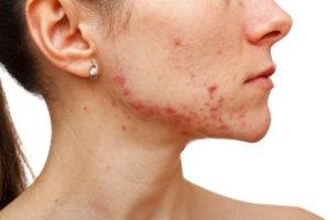 does-sugar-cause-acne