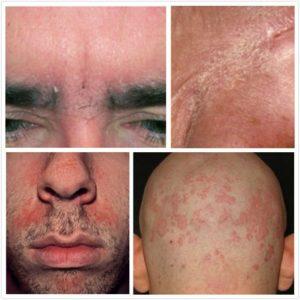 SD izpausmes pieaugušajiem sejas ādā, galvas matainās daļas ādā.