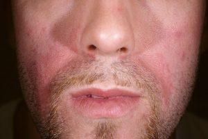 SD biežākās izpausmes sejas ādā.