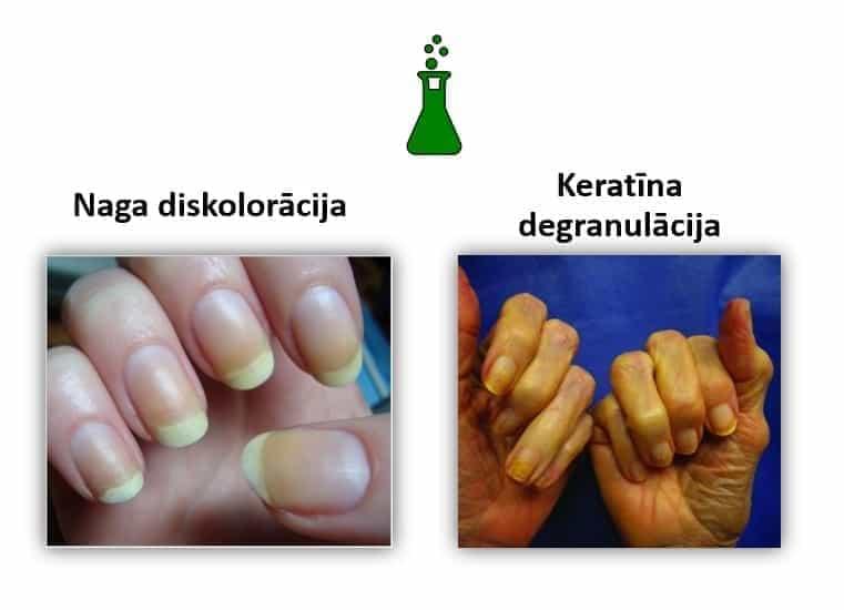 Diskolorācija un keratīna degranulācija