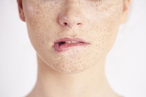 ādas pigmentācija